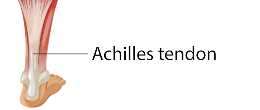 Graphic pointing out the Achillies tendon